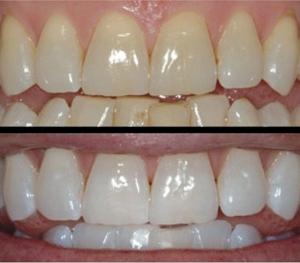 Express white - відбілювання зубів та встановлення зубних прикрас (СКАЙСИ)